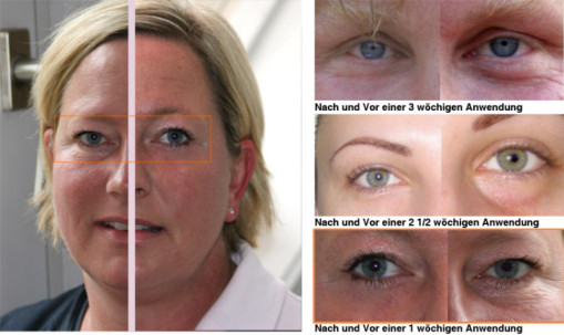 botox under eyes before and after pictures