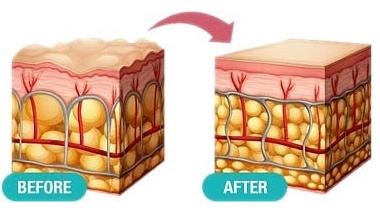 Wie funktioniert PHYTOCERAMIDES auf der Haut
